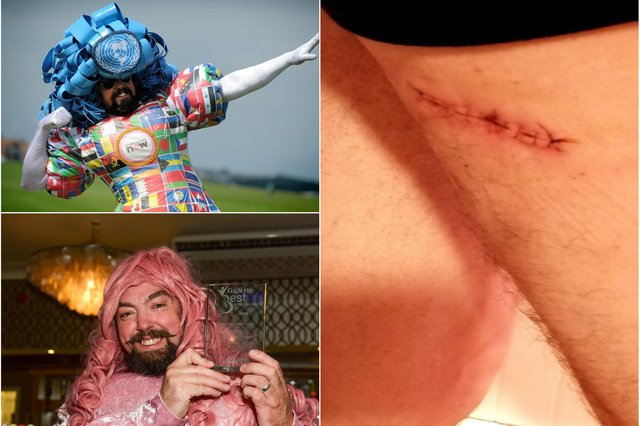 Colin Burgin-Plews who has fought back from an operation to remove skin cancer.